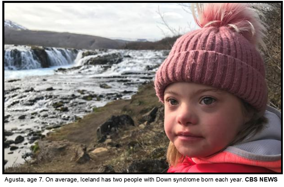 Iceland Downs Syndrome